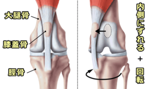 patellar-luxation